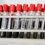 ВЦИОМ: 46% россиян ничего не знают о донорстве костного мозга